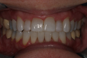 Smile Gallery Invisalign After