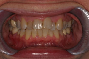 Smile Gallery Invisalign Before